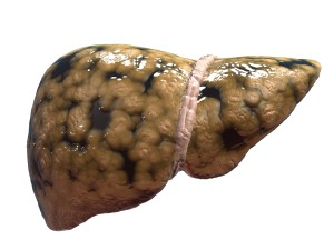 Fatty liver - Fat deposits are clearly seen on the liver.