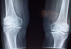 best orthopedic clinic in jayanagar